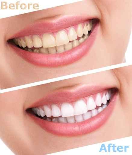 bleaching teeth treatment